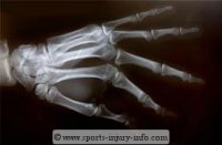 Hand X-Ray Fracture