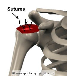 Rotator Cuff Sutures