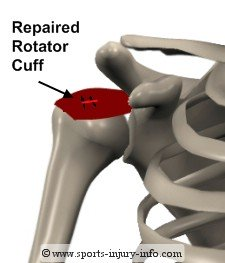 Completed Rotator Cuff Repair