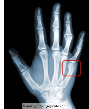 Boxers Fracture - Sports Injury Info