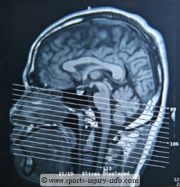 Head CT Scan