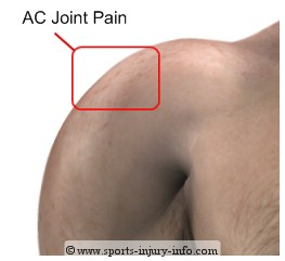AC Joint Pain