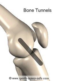 ACL Reconstruction Bone Tunnels