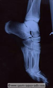 Ankle Sprains - Sports Injury Info