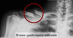 X-ray of Clavicle Fracture