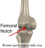 Femoral Notch