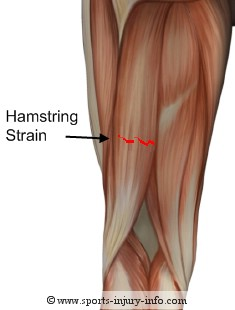 Hamstring Injury