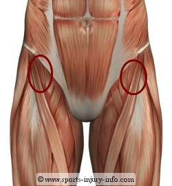 Hip Pain - Hip Flexor