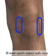 Area of Knee Pain