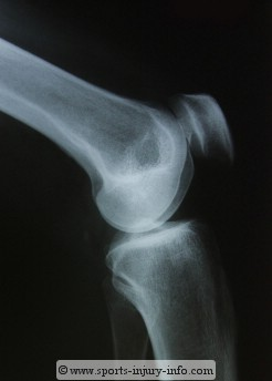 Patella X-ray