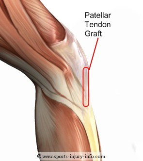 Patellar Tendon Graft Site