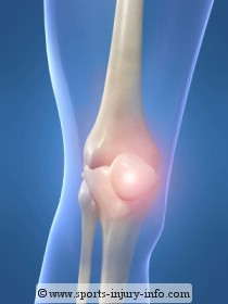 PCL Knee Injury