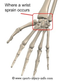 Wrist Sprain - Sports Injury Info