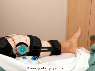 Post Operative Brace Sports Injury Info
