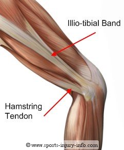 Illiotibial Band - Sports Injury Info