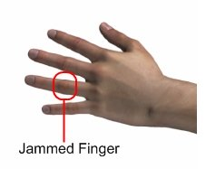 Jammed Finger Pain - Sports Injury Info