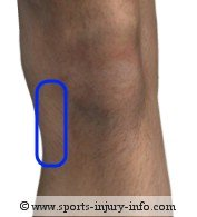 Knee Pain - MCL Injury