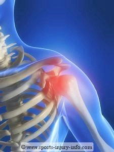 Painful Shoulder - Sports Injury Info