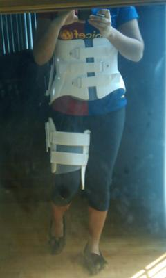 me in my lame brace.