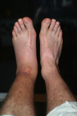 36 Hours After Injury