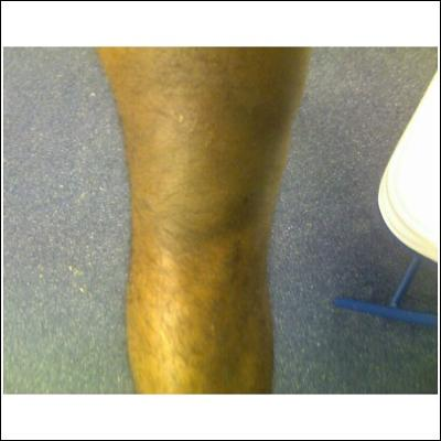 Swelling of right knee