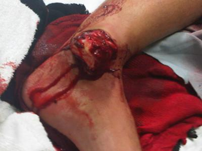 ... Fibula/ Compound Ankle dislocation (WARNING- Graphic Fracture Image