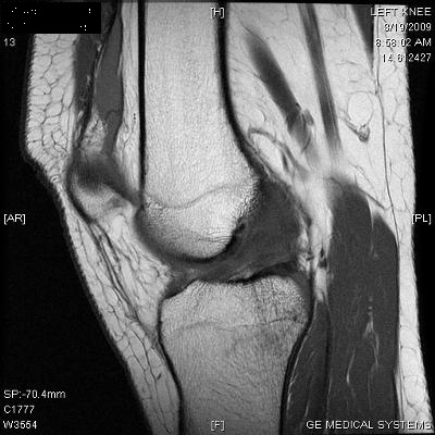 My MRI scan - quite interesting! ACL completely torn