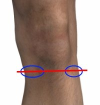 Meniscus Tear Pain - Sports Injury Info